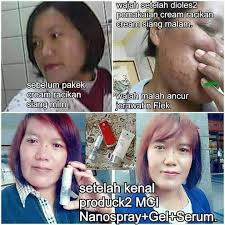 testimoni glucola serum gel 10