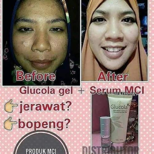 testimoni glucola serum gel 24