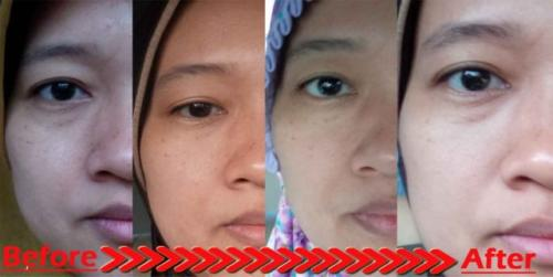 testimoni glucola serum gel 7
