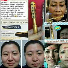 testimoni magic stick 24