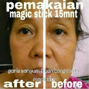 testimoni magic stick 3