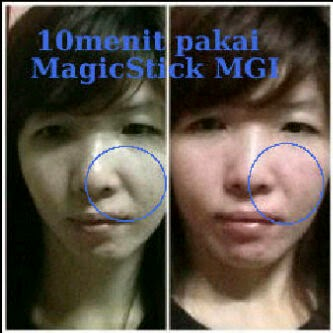 testimoni magic stick 5